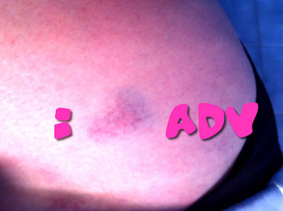 Heart Shaped Bruise